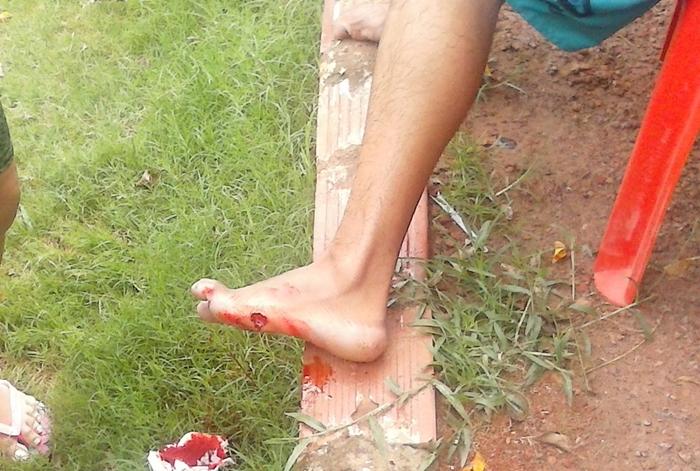 Vítima ficou com um buraco aberto no pé esquerdo